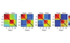 Анализ активности мозга показал, почему одни люди обучаются быстрее других