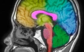 Как шумит спящий мозг
