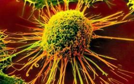 Украинские ученые изобрели вакцину против рака