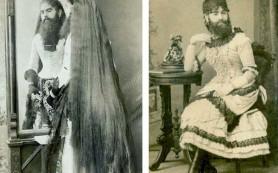 Анни Джонс – женщина с бородой