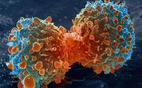 Ученые назвали причину возвращения рака
