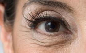 Как устранить морщинки под глазами
