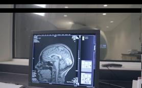 Ученые выяснили, где мозг хранит данные о времени и месте воспоминаний