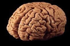 У разных людей мозг работает по-разному