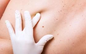 Ученые выявили новый ген, связанный с раком кожи
