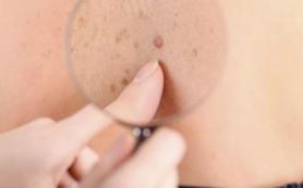 Специалисты обнаружили новое соединение для лечения меланомы