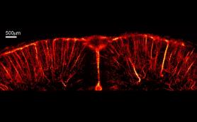 Сосуды живого мозга разглядели с микроскопическим разрешением