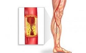 Российские ученые предложили лечить травмы нервов стволовыми клетками из жира