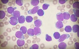 Математики ВШЭ нашли способ сделать лечение лейкоза у детей эффективнее