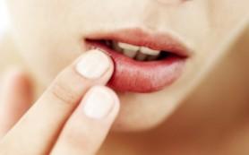 Противовирусные препараты уменьшают проявления герпеса