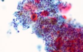 Генетики создали математическую модель развития некоторых типов рака