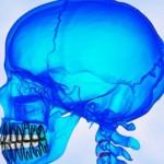 Стволовые клетки помогут вырастить поврежденный череп