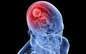 Клетки кожи помогут лечить опухоли головного мозга