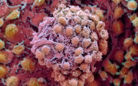 Биологи научились очищать инфицированные клетки от генов ВИЧ