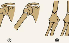 Особенности проксимального перелома плечевой кости