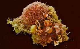 Нарушения в биологических часах повышают вероятность рака