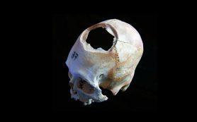 Ископаемые кости рассказывают историю самой древней операции