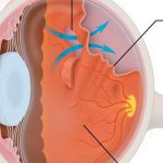 Профилактика отслойки сетчатки глаза