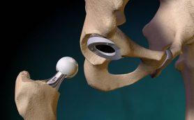 Эндопротезирование тазобедренного сустава. Популярно об этом методе лечения