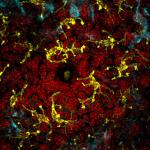 Медики узнали, как бактерии вызывают прыщи