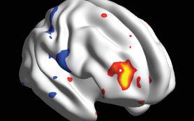 Обнаружена биологическая основа эффекта плацебо