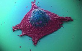 Раковые клетки мигрируют на жире