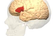 Заикание связано с недостатком кровоснабжения в одном из отделов мозга
