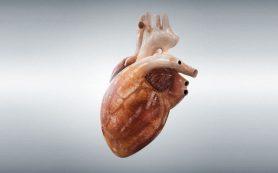 Сердечный робот