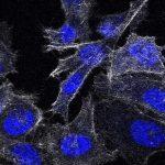 Раковые клетки передали друг другу лекарственную устойчивость