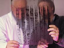 Медики назвали возможные ранние симптомы онкозаболеваний
