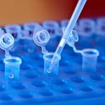 Биохимики из России и США обнаружили побочный эффект нового метода иммунотерапии опухолей