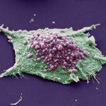Раковые клетки сопротивляются лекарствам без мутаций