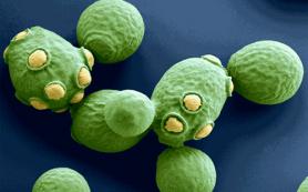 Глобальное оледенение неопротерозойской эры связали с взрывным ростом численности эукариот