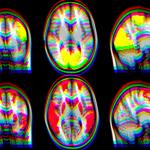 Галлюцинации при болезни Паркинсона связали с нарушением нейронных связей