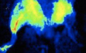 Биологи изучили роль нейроглии в формировании зрительной системы