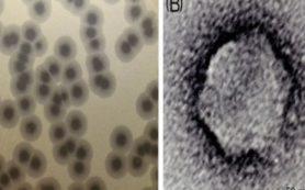 Открыты новые вирусы, взаимодействующие с бактериями – возбудителями внутрибольничных инфекций