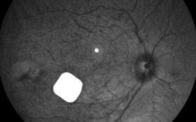 Во Франции одобрили клинические испытания бионических глаз