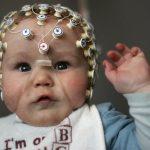 Ультразвук позволяет заглянуть в младенческий мозг