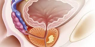 Как решается проблема увеличенной предстательной железы