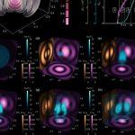 Ученые нашли метод получения экстремально плотной электрон-позитронной плазмы