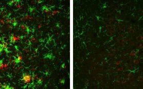 Неактивность фермента избавила мозг мышей от белковых бляшек