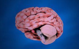 Ученые СибНИИЦМТ заканчивают клинические испытания системы для восстановления памяти после инсультов