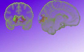 Активность мозга указала на самых социально значимых людей