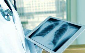 Российские химики научились выявлять рак на ранних стадиях