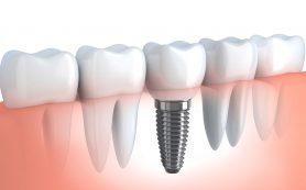 Протезирование зубов. Полезная информация о дентальном импланте
