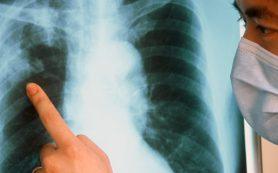 Особенности и признаки открытой формы туберкулеза