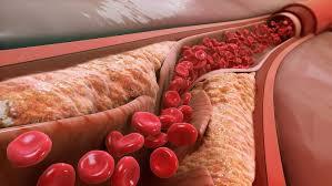 Ферменты против атеросклероза