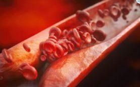 Российские биологи выяснили, что белки, способствующие развитию атеросклероза, можно использовать для борьбы с холестериновыми бляшками