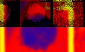Физики оценили эффективность химиотерапии с помощью рассеяния Бриллюэна