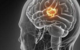 Ученые РФ расшифровали структуру молекулы, способной помочь в лечении опухолей